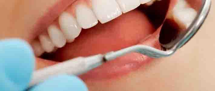 Negligencia médica de un dentista