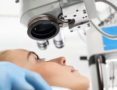 Casos de intervención Lásik (oftalmología)