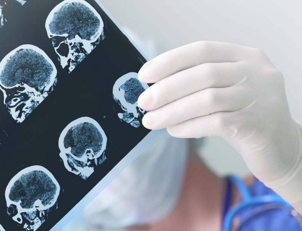 Parálisis cerebral como secuela de una negligencia