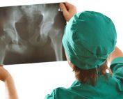 Negligencia médica en Traumatología