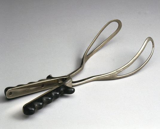 Negligencias médicas en partos con fórceps